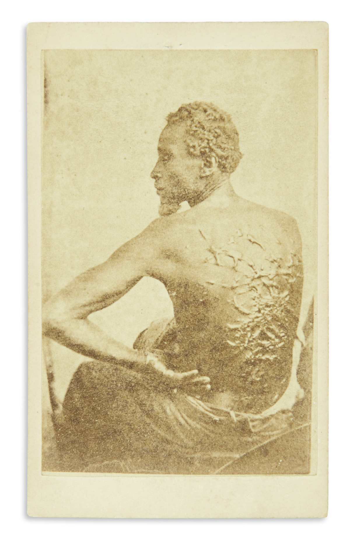 (SLAVERY AND ABOLITION.) [McPherson & Oliver; photographers.] The Scourged Back.