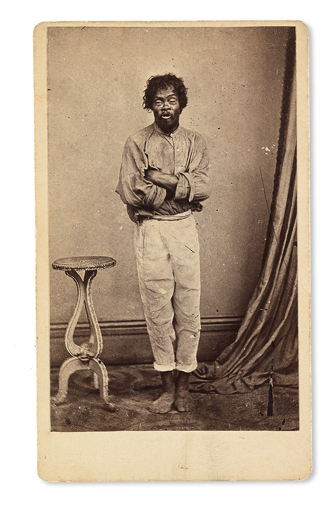 """(SLAVERY AND ABOLITION--PHOTOGRAPHY.) Carte-de-visite photograph of """"Tom,"""" very likely a captured runaway."""