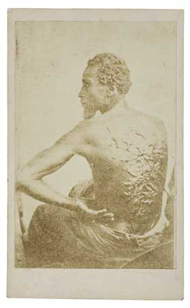 (SLAVERY AND ABOLITION--PHOTOGRAPHY.) The Scourged Back.