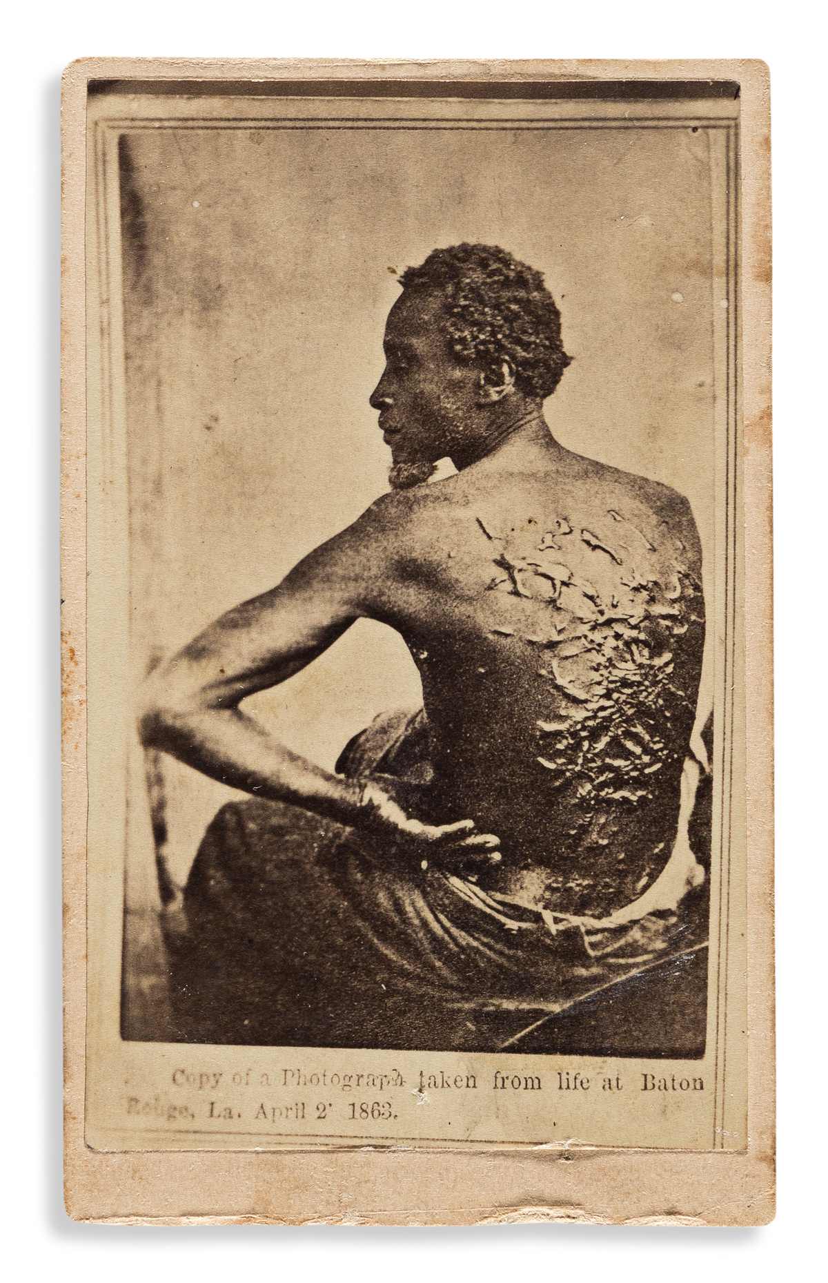 (SLAVERY AND ABOLITION.) [McPherson & Oliver; photographers.] [The Scourged Back.]