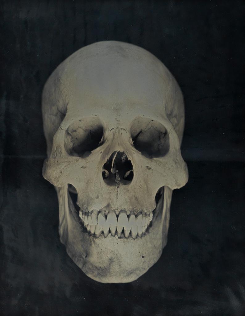 ADAM FUSS (1961- ) Untitled (Human skull).
