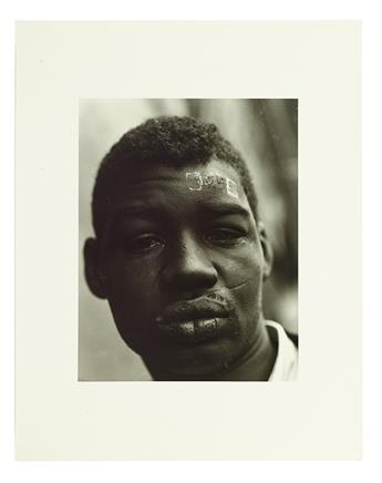 (CIVIL RIGHTS.) DAVIDSON, BRUCE. Man with band aid on his forehead (supplied title).